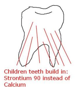 Стронций-90 вместо кальция в зубах